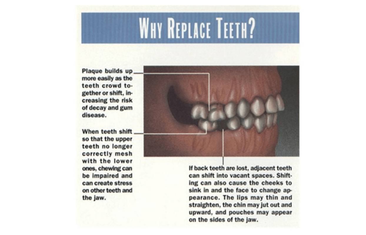 Diagram - why we replace teeth